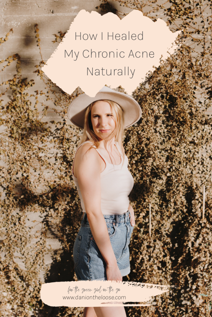 how-i-healed-my-chronic-acne-naturally-dani-on-the-loose